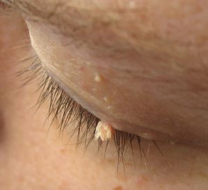 Human eye lid with a wart